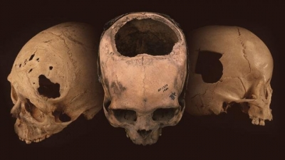 Ancient Peru s cranial surgeons highly skilled: Study