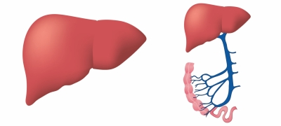 Researchers develop sensor to detect fatty liver disease