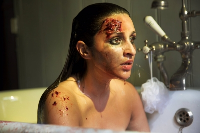 Parineeti shares bruised avatar from 'The Girl On The Train'