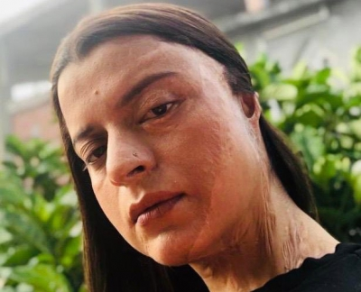 Acid attack survivor Rangoli: Parents would see my face and faint