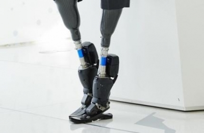 Charitable body to give free artificial limbs to differently-abled