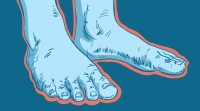 Study supports link between coronavirus and 'Covid toes'